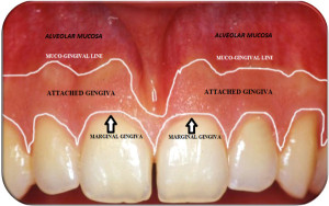 Marginal-free-gingiva-attached-gingiva-and-alveolar-mucosa.png