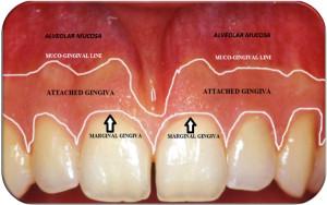 Marginal-free-gingiva-attached-gingiva-and-alveolar-mucosa.png